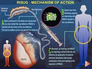 male contraceptive gel